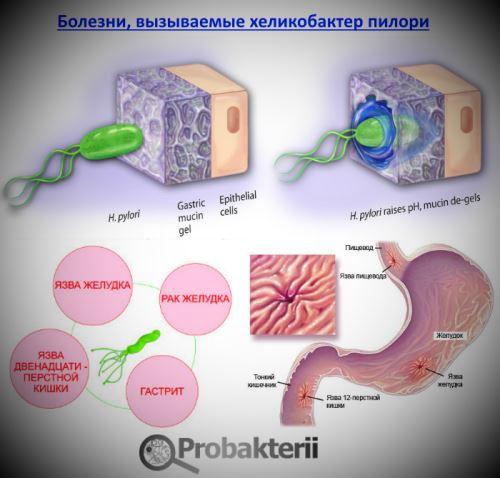 Такое лечение от бактерии