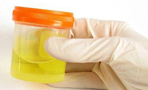 Escherichia coli при беременности в моче