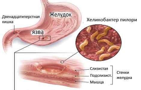 лечение хеликобактериоза