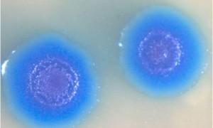 Искусственно созданная бактерия с именем Синтия – биологическое оружие нового поколения