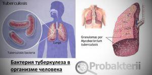 Бактерия туберкулеза в организме человека