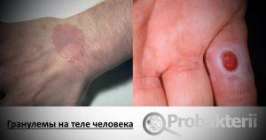 Гранулемы на теле человека