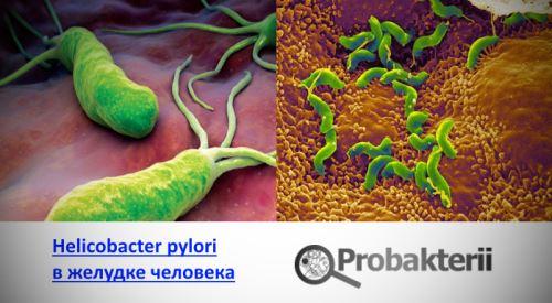 Хеликобактер пилори в желудке человека