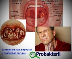 Виды ангин: бактериальная, вирусная и грибковая