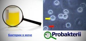 Бактерии в моче под микроскопом