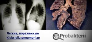 Легкие, поврежденные klebsiella pneumoniae