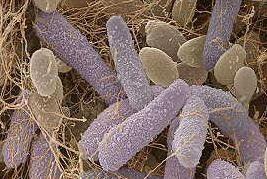 Acetobacter xylinum под микроскопом