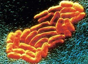 Klebsiella pneumoniae (палочка Фридлендера)