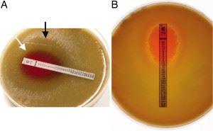 Комбинированный метод определения чувствительности бактерии к антибиотикам, или метод Е-тестов