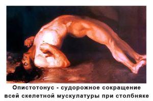 Опистотонус (тоническое сокращение мышц)