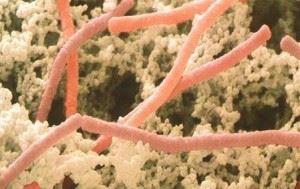 Болгарская палочка (Lactobacillus bulgaricus)