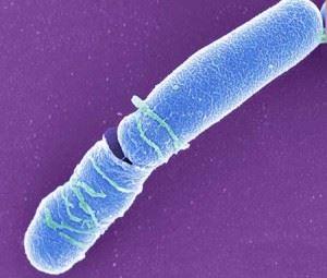 Bacillus cereus - возбудитель сибирской язвы