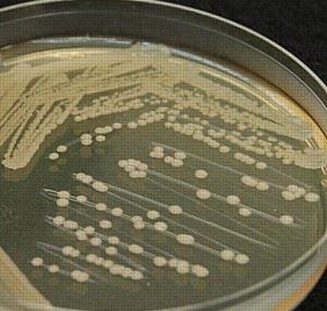 Колонии bacillus subtilis