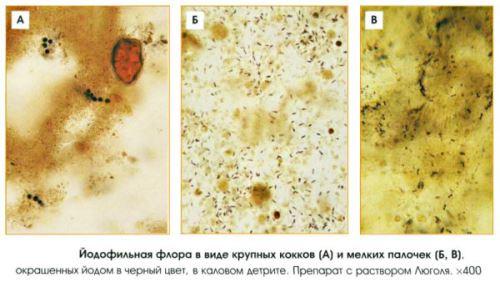 окрашенный йодом анализ кала