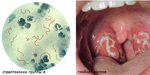 стрептококк и гнойный налет при ангине