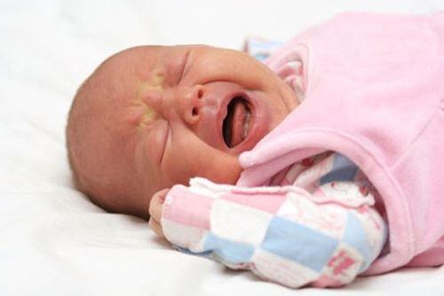 Дисбактериоз у новорожденного