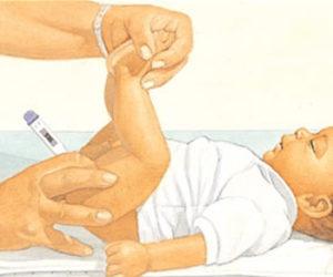 Ректальное измерение температуры у ребенка
